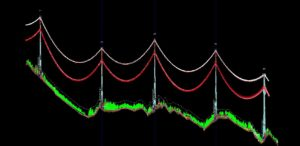 Image of Powerlines